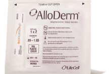 AlloDerm Regenerative Tissue Matrix