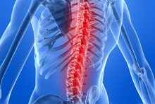 Back and Spinal Cord Injury